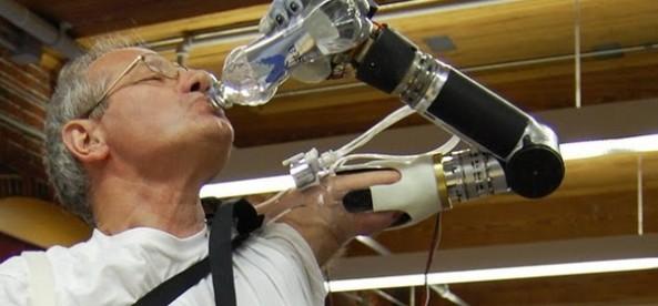 Brazos biónicos permiten recuperar funciones y el tacto  210a6a715eaa